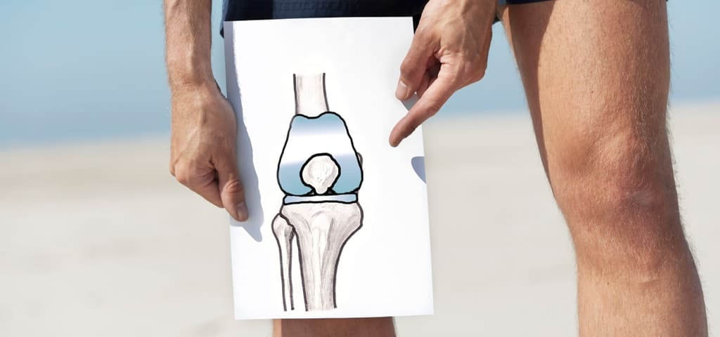 joint replacement surjery