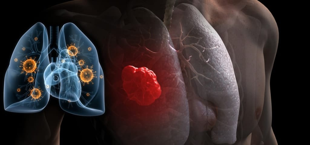 Food to Reduce the Risk of Lung Cancer